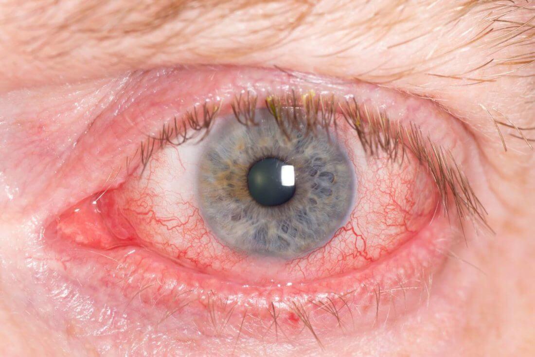 Снять опухоль глаз домашних условиях