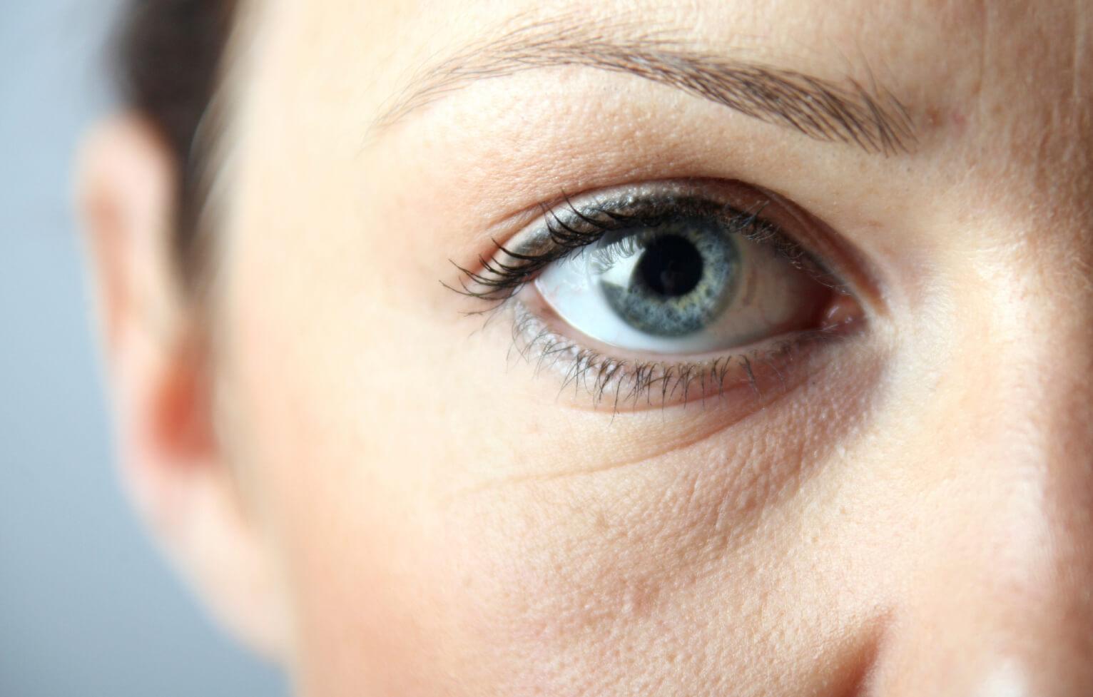 Как убрать отек над глазами в домашних условиях