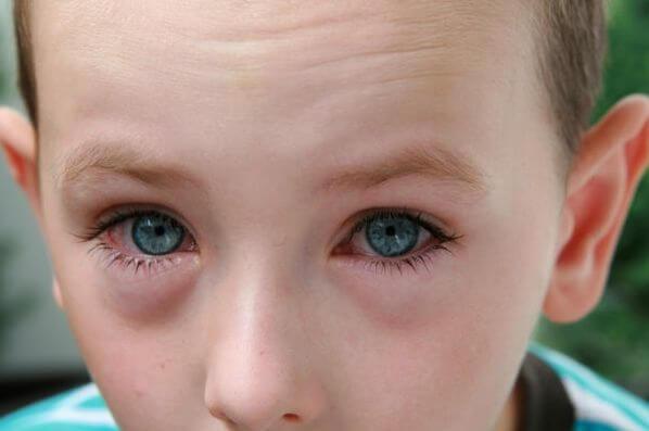 Почему отеки под глазами у ребенка