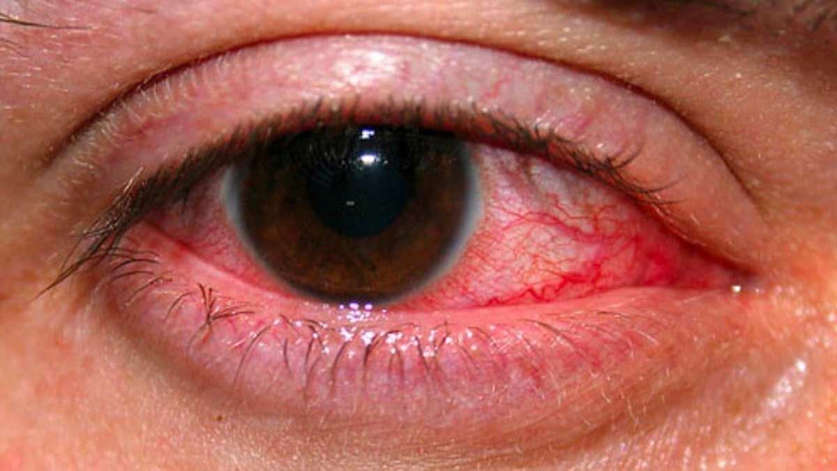Чем вылечить глаза от сварки в домашних условиях 238