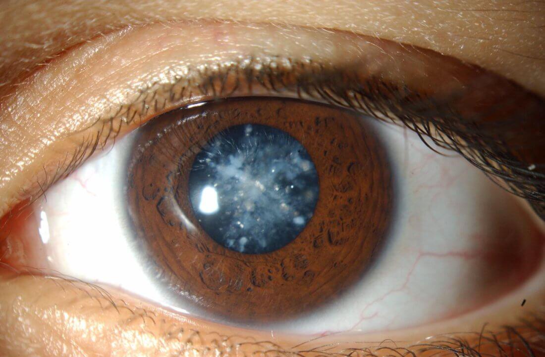 Brigitte Nielsen - IMDb Photo shows eye problem