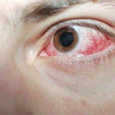 Ожог роговицы глаза: покраснение