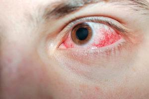 Ожог роговицы глаза: симптомы, последствия, правильная первая помощь