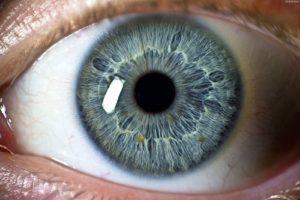 Строение роговицы глаза