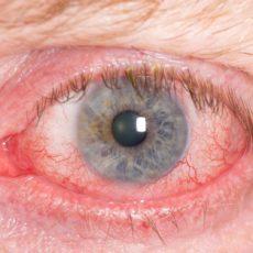 Контузия глаза: заметны полопавшие сосуды