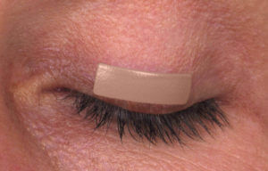 осложнения травм глаза