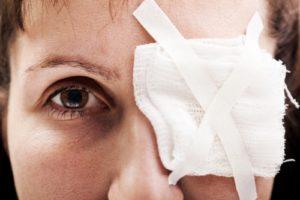 Виды травм глаза