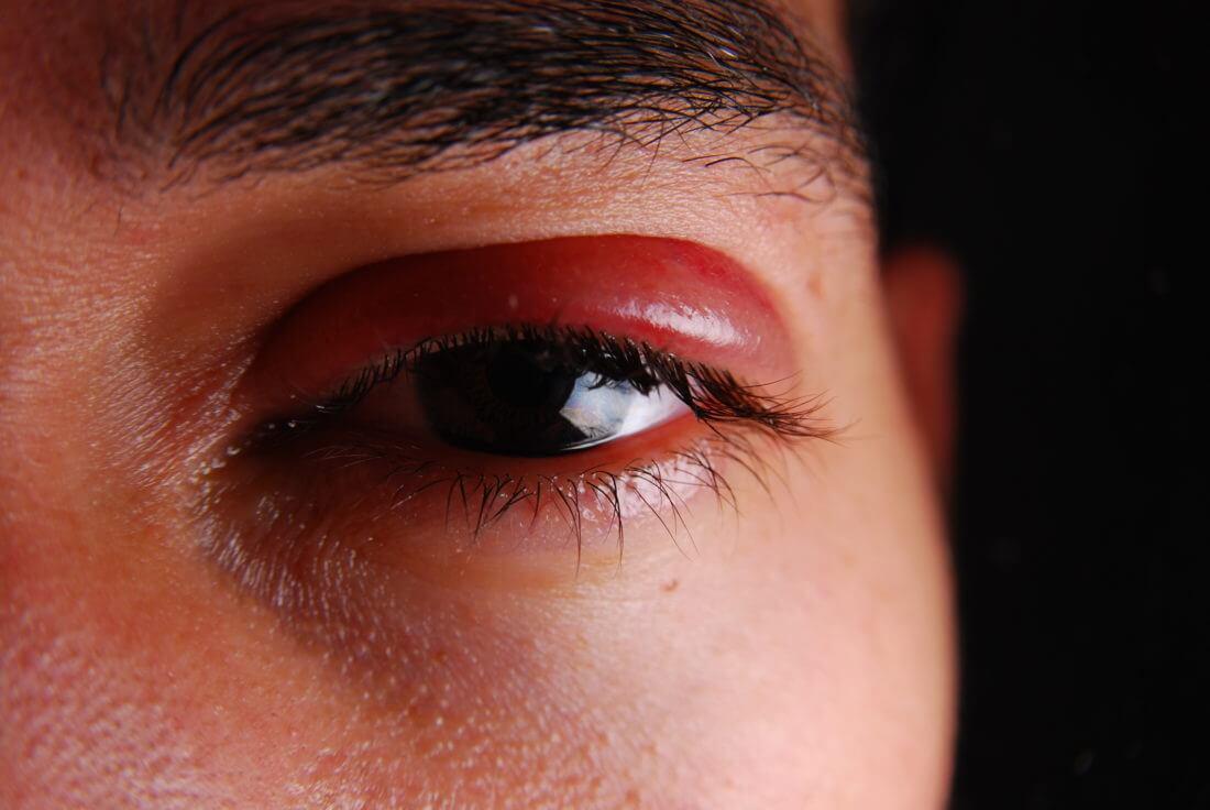 Как сделать синяк на глазу
