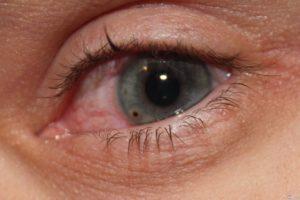 Травма: ранение глаза