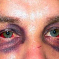 Травмы глаза: ушиб и контузия