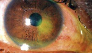 внешний осмотр глаза