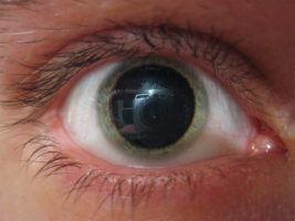 Офтальмоскопия под мидриазомеч
