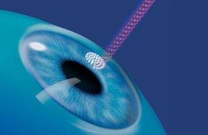 Что такое рефракция зрения, причины близорукости, дальнозоркости и астигматизма