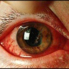 Проникающие ранения глазного яблока бывают как бытовыми, так и производственными