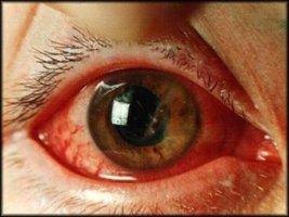 Проникающие ранения глазного яблока, как помочь пострадавшему