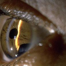 В начальных стадиях глаукома протекает бессимптомно