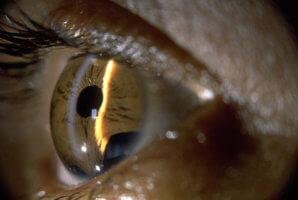 Глазные капли Косопт: инструкция к примненению, противопоказания, отзывы