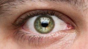 Патологии склеры, радужки глаза, роговицы