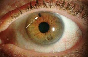 Заболевания глазного яблока и стекловидного тела