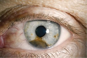 Хориоидея глаза