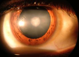 Что такое катаракта, как лечить, механизм развития, причины и симптомы