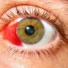 Гемофтальм - кровоизлияние в стекловидное тело