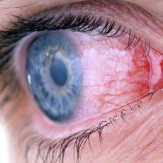 Хронический конъюнктивит - ощущение песка в глазах