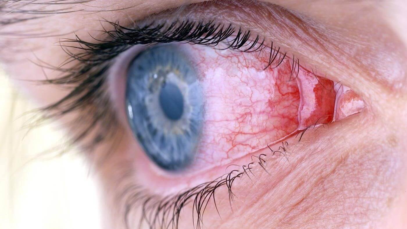 Острый конъюнктивит: симптомы и лечение, от и до о проблеме