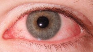 глазные капли гаразон