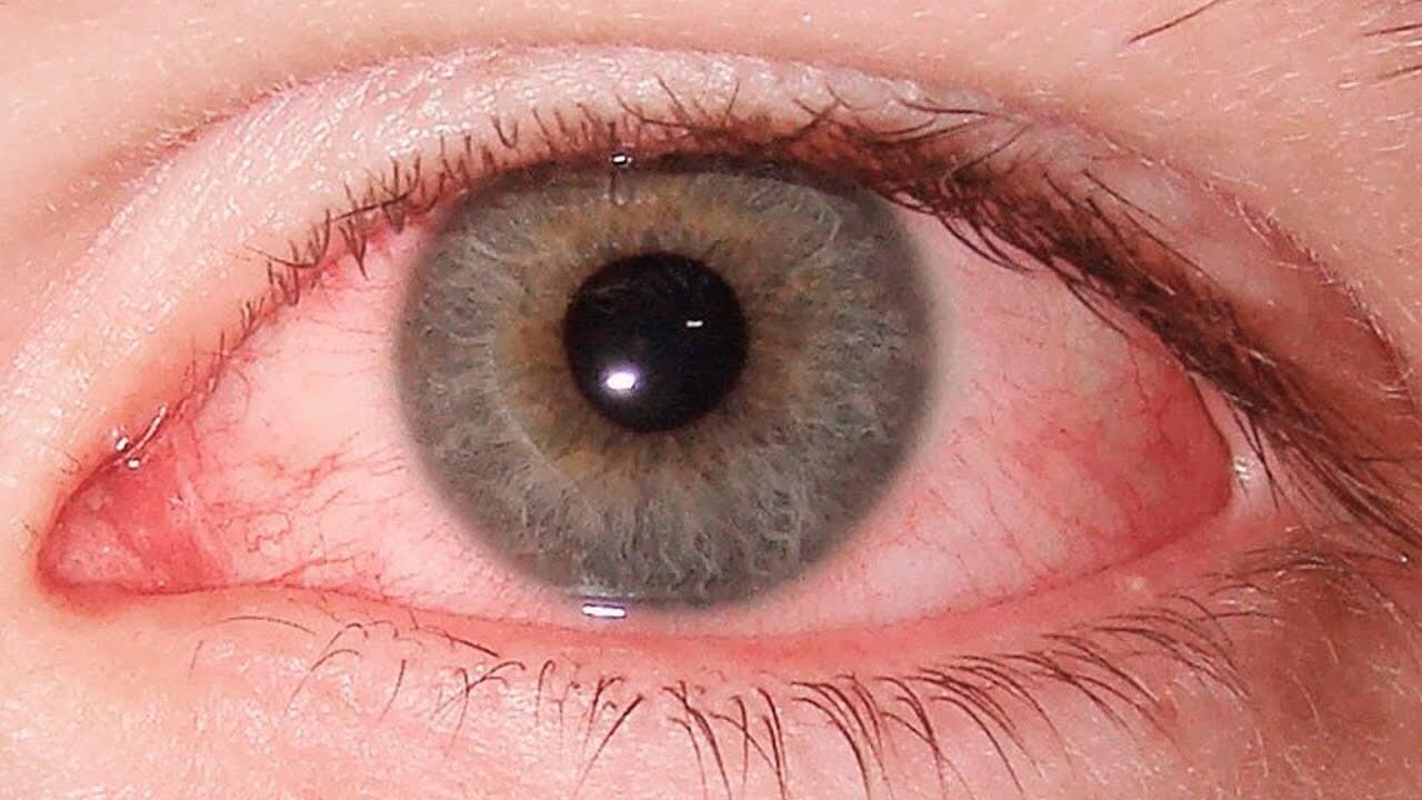 Глазные капли Гаразон – защита органа зрения от воспаления