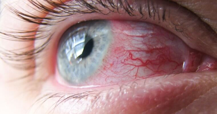Дифтерийный конъюнктивит: симптоматика недуга и подробно о процессе его терапии