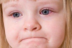 Гонобленнорея новорожденных