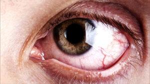 Глазные капли Арутимол