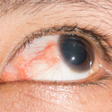 Эписклерит - воспалительный процесс в эписклере