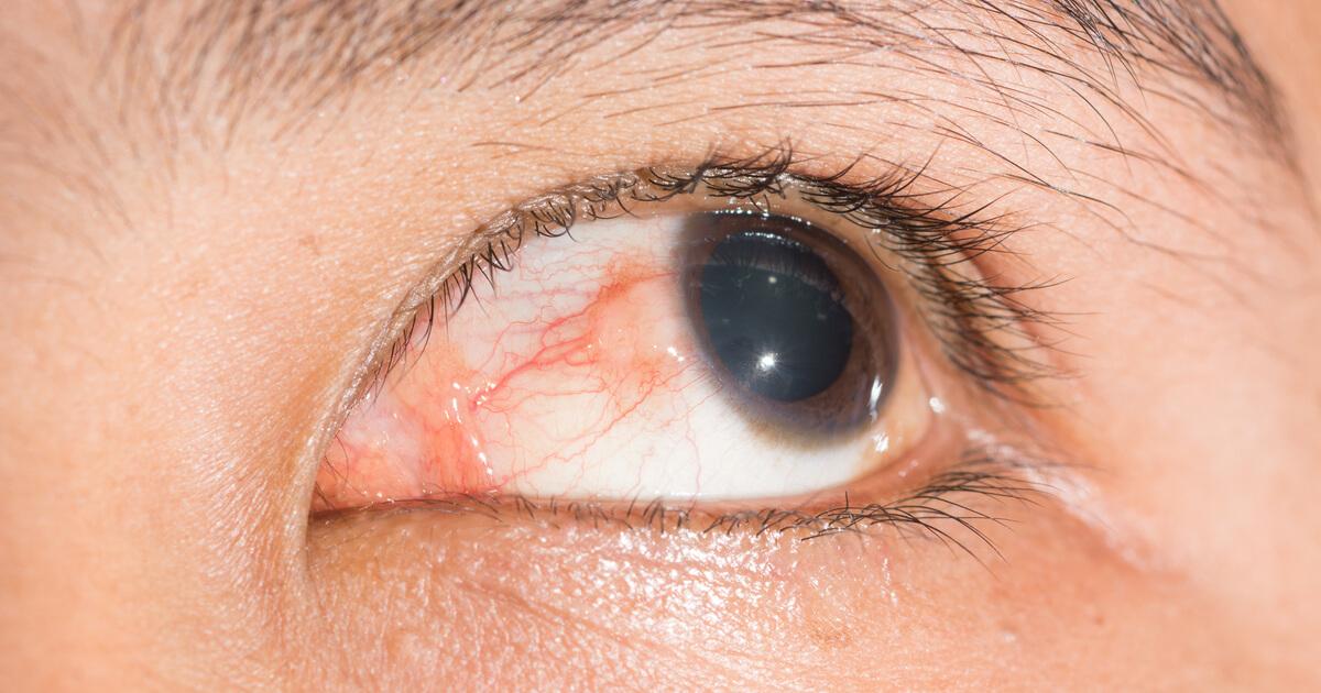 Эписклерит: что это такое, симптомы, профилактика и осложнения