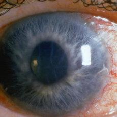 Глаукома встречается достаточно часто