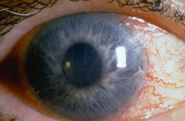 Глаукома – что это, определение, методы терапии, прогноз
