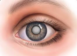 Сенильная катаракта