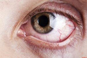 Глазные капли Мирамистин