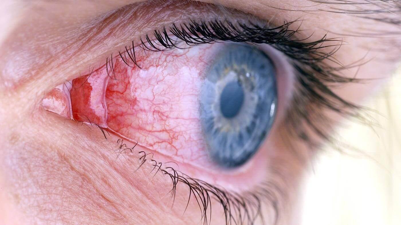 Кератит глаза: что это такое, диагностика и симптомы