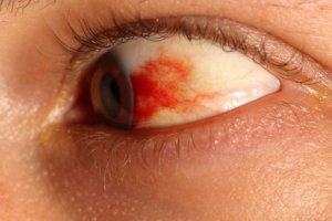 Кровоизлияния в сетчатку глаза