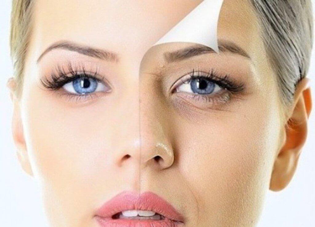 Почему под глазами появляются морщины: особенности процессов в коже
