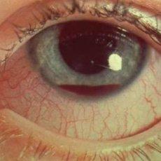 Тупые травмы глаза в большинстве случаях сопровождаются кровоизлияниями