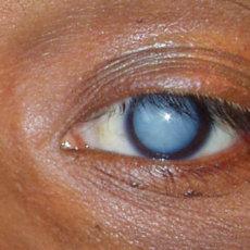 Основное показание к применению Вицеина - различные типы катаракты