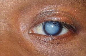 Глазные капли Вицеин инструкция
