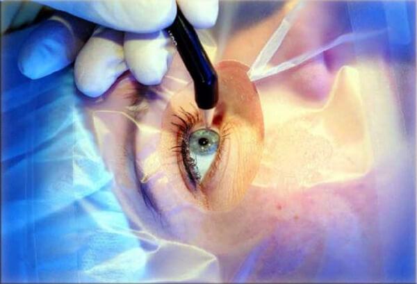 Сахарным диабетом делают операции на глаза