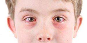 Стероидные препараты в офтальмологии