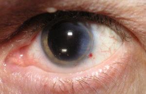 Для лечения катаракты