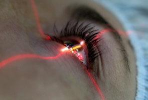 Нарушение цветового зрения