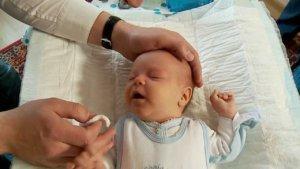 Массаж слезных каналов у новорожденных